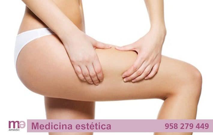celulitis-clinica-amedic